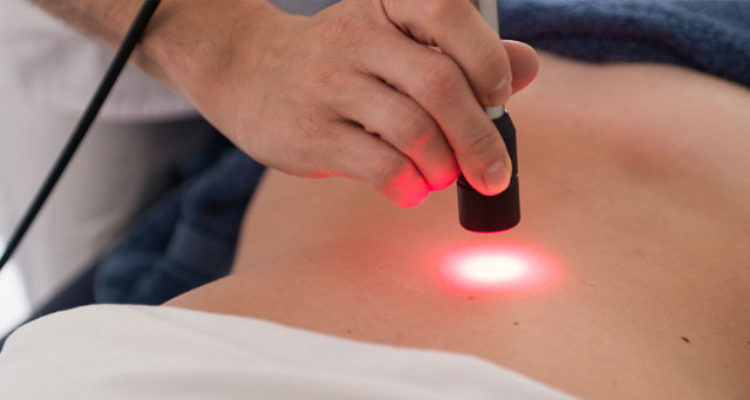 I benefici della Laserterapia